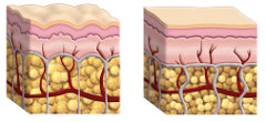 cellulite skin cross section